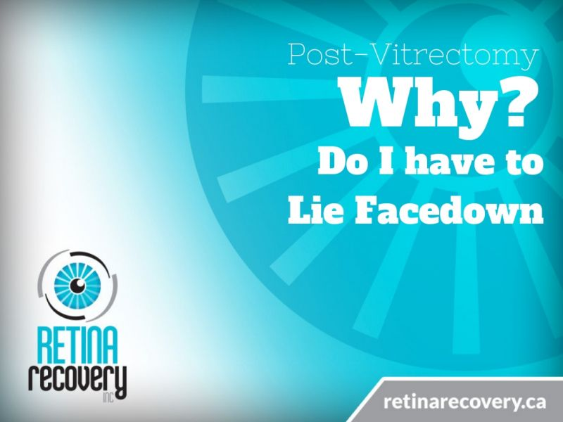 post-vitrectomy-why-do-i-have-to-lie-facedown